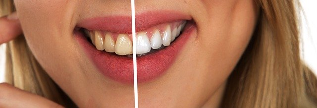 Intended to whiten teeth