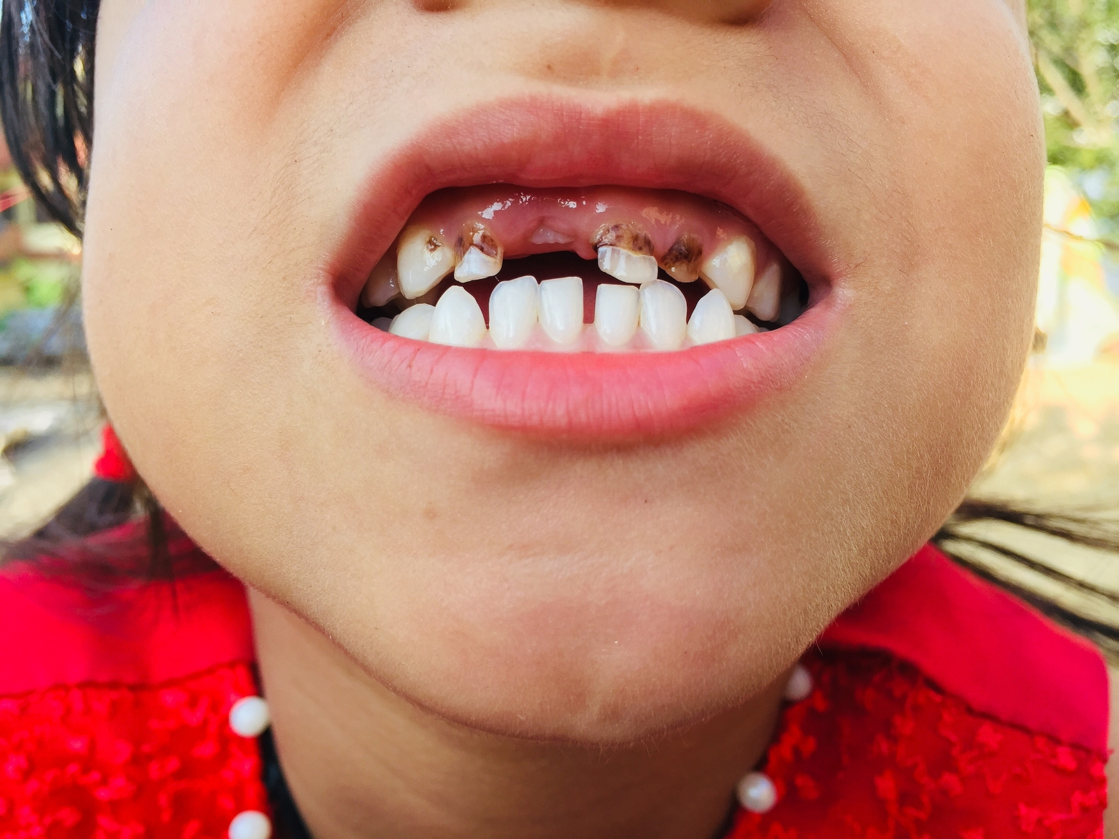 what do cavities look like picture of girl's mouth